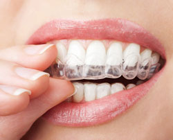 Invisalign Hollywood, FL